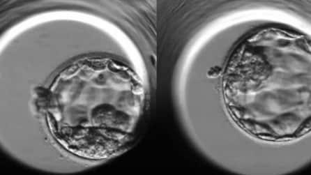 Ecco come nasce un embrione