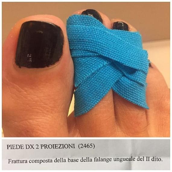 La conduttrice mostra su Instagram la foto del suo infortunio: si è rotta il terzo dito del piede destro, riportando una frattura composta. Barbara assicura ai suoi telespettatori che la sua trasmissione andrà regolarmente in onda.