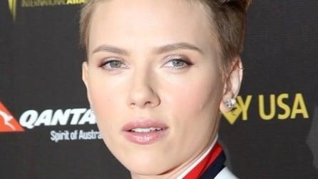 Difetti da star: tutte le celebrities con l'acne