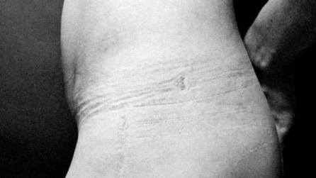 Il servizio fotografico che mostra gli effetti degli abiti stretti sul corpo femminile