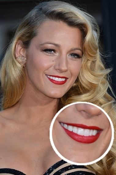 Labbro superiore più sottile