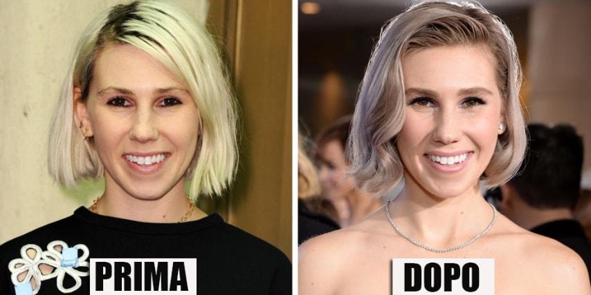 I capelli grigi sono la nuova moda del 2015. GETTY