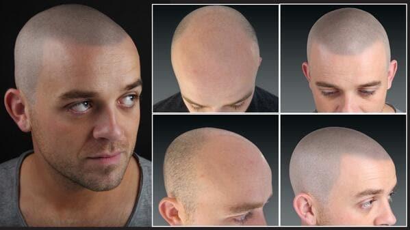 Taglio di capelli uomo calvo