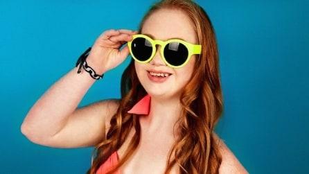 Ha la sindrome di Down, ma riesce a realizzare il suo sogno: oggi è una modella
