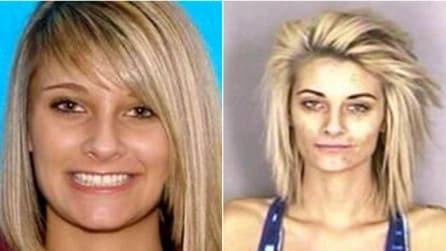 Gli effetti dell'eroina sul volto di una persona