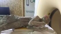Scavi di Pompei: ecco cosa si nasconde nei calchi dei morti durante l'eruzione