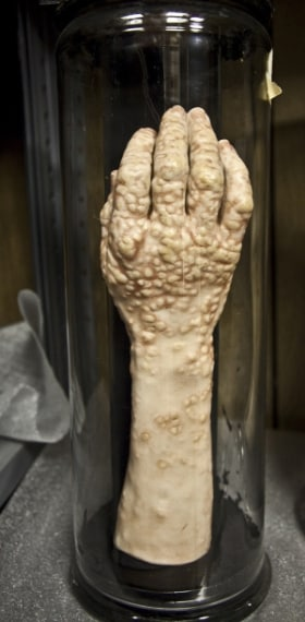 Parti di corpi umani e feti sono conservati in questo museo davvero raccapricciante.