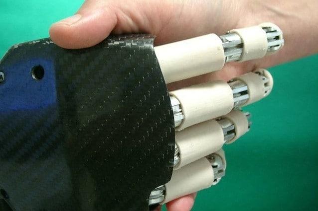I ricercatori italiani dell'istituto di BioRobotica della Scuola Superiore Sant'Anna sono riusciti a realizzare una mano bionica economica, esteticamente bella e pratica poiché per essere impiantata non richiede interventi chirurgici. [Foto https://www.facebook.com/165421993522527/photos/a.165422333522493.42074.165421993522527/165422336855826/?type=3&theater]