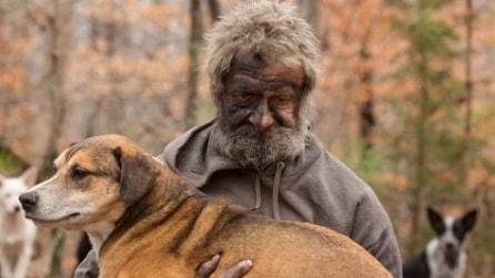 """L'appello del clochard malato: """"Salvate prima i miei cani, poi curate me"""""""
