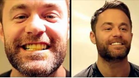 Il rimedio naturale per avere denti bianchi