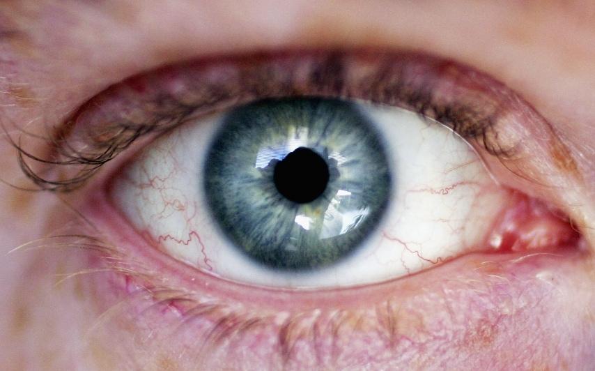 Occhi gialli - Insufficienza epatica