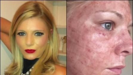 Si sottopone ad un trattamento cosmetico che le brucia il viso: la triste storia di Georgie