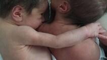 Non credevano ce l'avrebbero fatta: il toccante abbraccio tra le gemelline premature