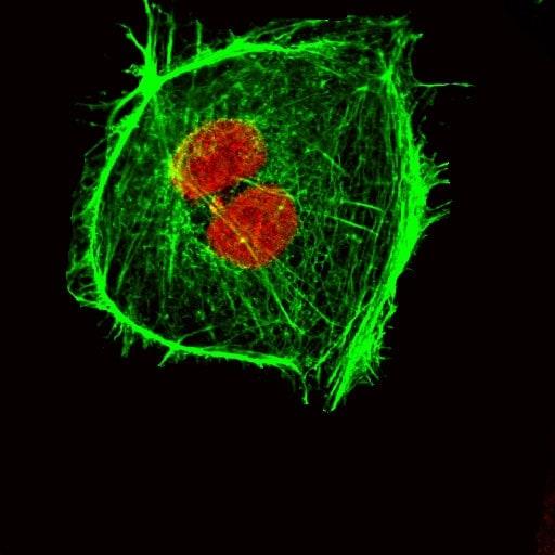Mical2 spenta in cellule tumorali. In rosso si identifica il DNA nucleare, in verde da F actina del citoscheletro.