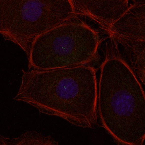 Mical2 spenta in cellule tumorali. In rosso si evidenzia la F actina del citoscheletro, In blu il DNA nucleare.