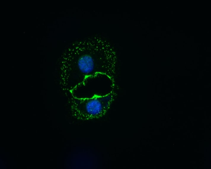 Mical2 spenta in cellule tumorali. In verde si identifica la presenza di ZO1, in blu il DNA nucleare.