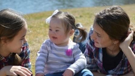 Le consiglia di abortire perché la bambina ha la sindrome di Down: la sua risposta vi emozionerà
