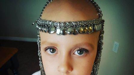 Gianessa, la bimba che combatte l'alopecia con il sorriso