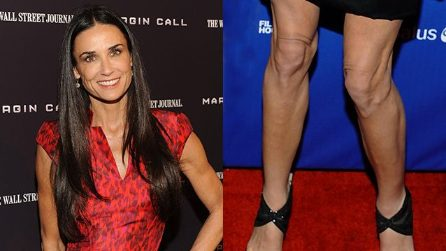Difetti da star: le ginocchia brutte
