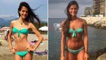 La trasformazione di Silvia dopo l'anoressia