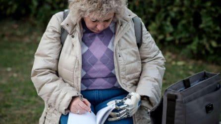 La donna italiana con la mano bionica: come funziona