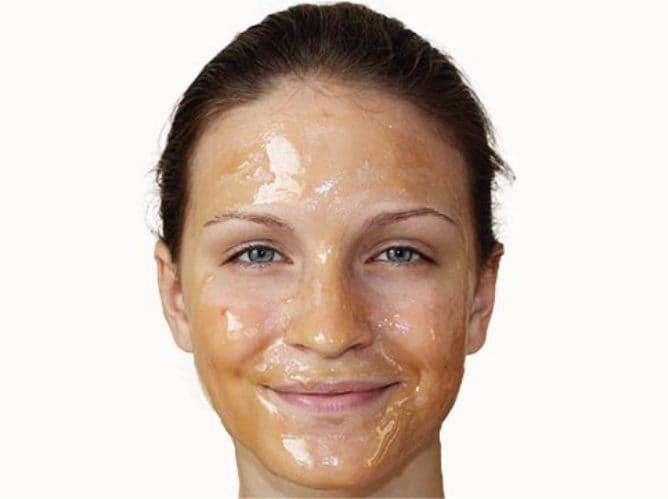 Il miele è un prodotto naturale ottimo da usare contro l'acne. Fonte: https://ladyformula.com/