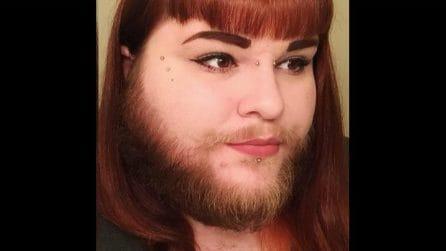 Ragazza con la barba trova l'amore con una modella e la sua vita cambia completamente