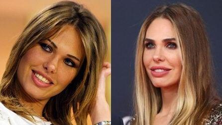 Prima e dopo la chirurgia: il ritocchino alle labbra