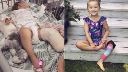 Le amputano la gamba a 1 anno: oggi cammina per la prima volta grazie alle protesi