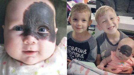 """Bimba nasce con un'enorme voglia sul viso, i genitori scelgono di non rimuoverla: """"La rende unica"""""""