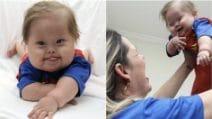 """Affetto dalla sindrome di Down lotta per la vita, il gesto d'amore della madre: """"È il mio supereroe"""""""