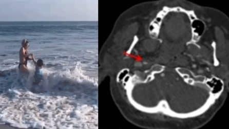 Travolta da un'onda, donna avverte mal di testa: la radiografia mostra i gravi danni subiti