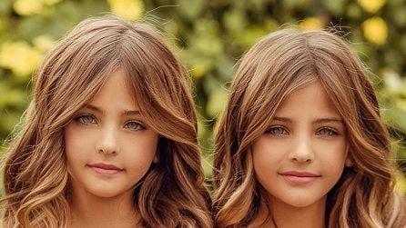 Ava e Leah, come sono diventate le ex gemelle più belle del mondo