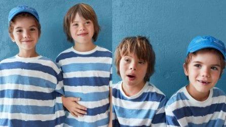 Patrick, il bambino con la sindrome di Down che posa per Zara
