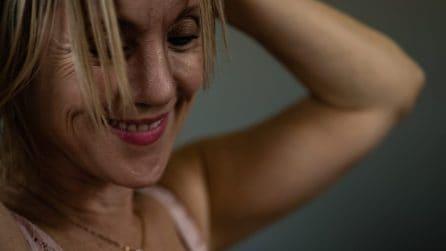 Le donne guarite dal cancro al seno mostrano le cicatrici sulla pelle