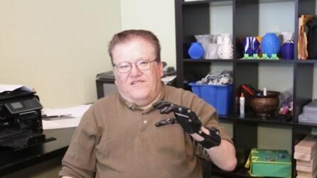 Costruisce una protesi che costa 50 dollari con una stampante 3D: il risultato è sorprendente