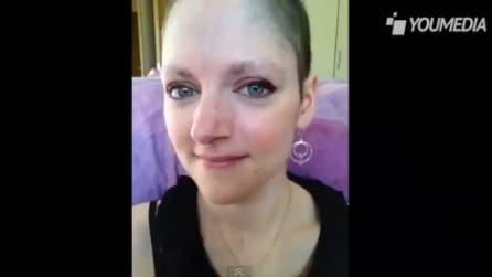 Perde tutti i capelli a causa della chemioterapia così scatta per 18 mesi la loro ricrescita