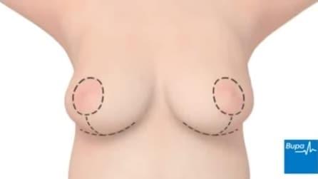 Ecco come si effettua un intervento di riduzione del seno