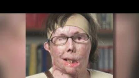 Carmen, sfigurata dal marito ora ha il volto di un'altra donna