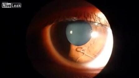 Il verme che vive nell'occhio di una donna