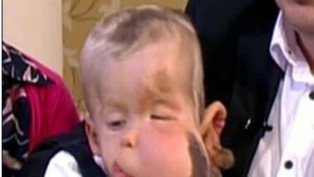 Bambino con enorme deformazione sul viso