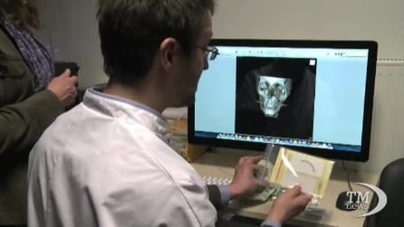 Francia, la stampante 3D entra in sala operatoria