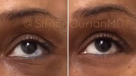 Il trattamento speciale per rimuovere le occhiaie