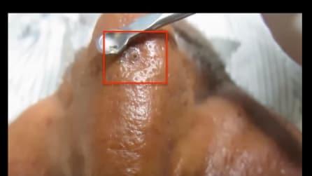 L'uomo ha la faccia ricoperta di punti neri: la pulizia del viso è disgustosa