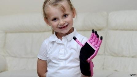 Costruiscono una protesti per la figlia grazie ad una stampante 3D: è costata 50 sterline