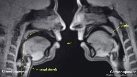 Ecco come appare il corpo umano nelle immagini offerte dalla risonanza magnetica