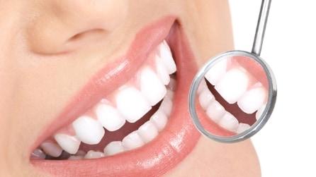 Un rimedio veloce e naturale per avere denti bianchi in 3 minuti