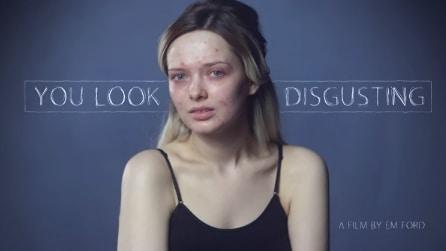 Posta le sue foto sui social senza trucco e con l'acne, ecco le reazioni delle persone