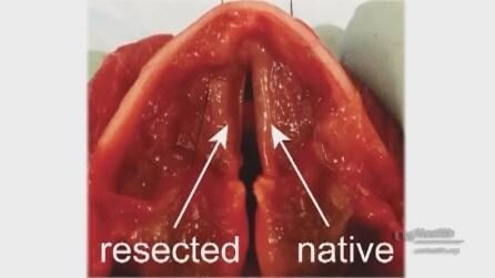 Create in laboratorio le corde vocali artificiali funzionanti