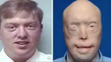 Il pompiere sfigurato dalle fiamme ora ha un nuovo volto, ecco il suo grazie alla scienza